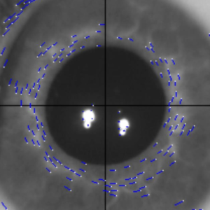 DirectFlow: A Robust Method for Ocular Torsion Measurement